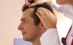 Best Hair Loss Treatment for Men Cover