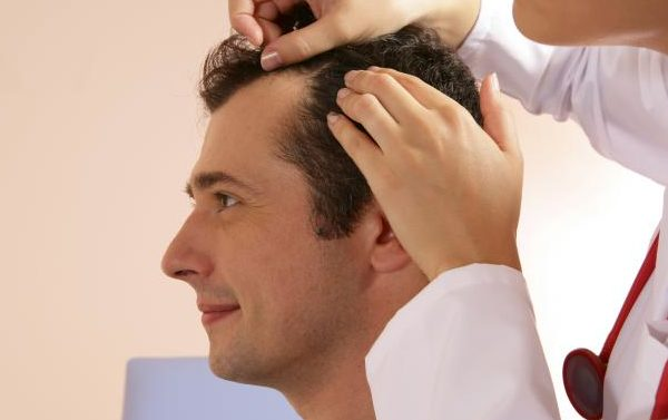 Best Hair Loss Treatment For Man