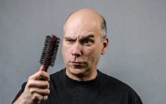 What Causes Hair Loss in Men