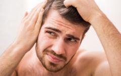 Sudden Hair Loss in Men