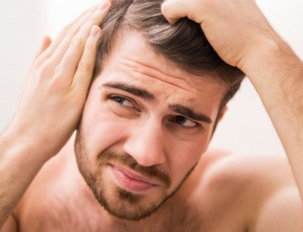 Sudden Hair Loss in Men